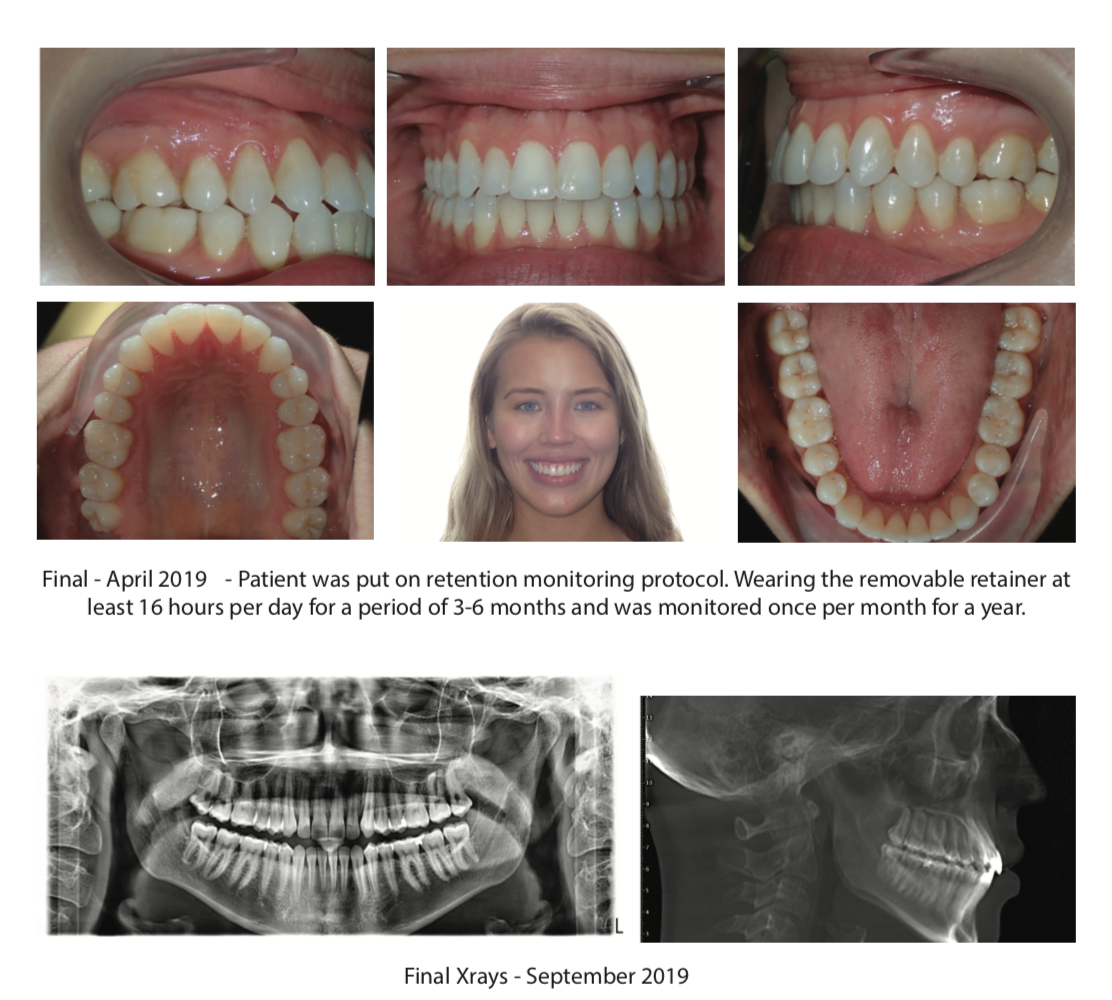 The truth about Dental Monitoring [Webinar]